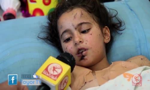 كلنا غزة  الطفلة الجريحة لمى أبو حصيرة  