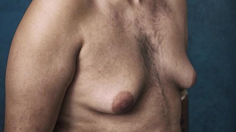 شاب رياضة كمال الاجسام تحول صدره الى صدر أنثى بعد تناوله  المقويات وحاول الانتحار لزيادة هرمونات  الانوثة في جسده